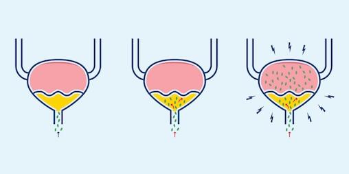 Harnwegsinfektion bei Frauen