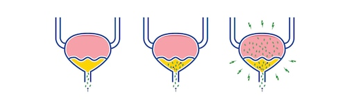 Illustration of how bacteria infects the bladder in a urinary tract infection