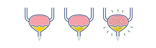 Ilustrácia spôsobu infekcie močového mechúra baktériami pri infekcii močového traktu