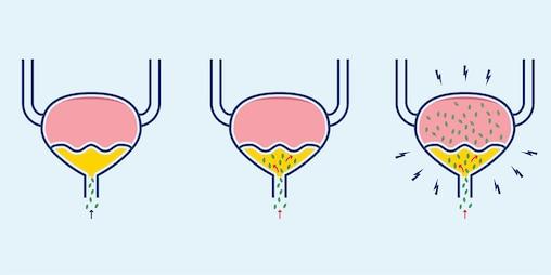 Illustration af hvordan bakterier inficerer blæren i en urinvejsinfektion