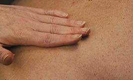 Hand applies TENA moisturizing product on the skin