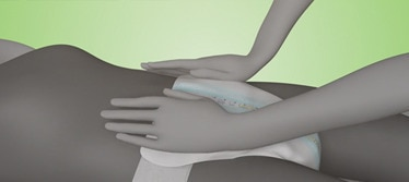 Illustration of a caregiver helping put on a TENA Flex when their loved one is lying down