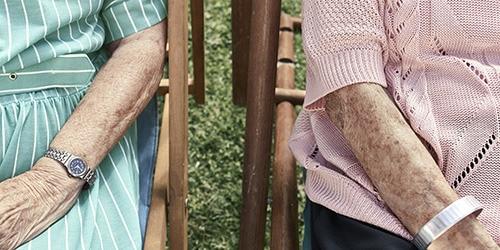 Starnutie sa nevyhýba ani pokožke
