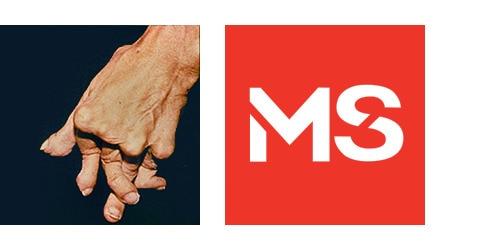 TENA-TPW-Arthritic-Hands-and-MS-500x250-no-left-margin.png