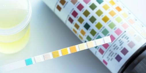 Urinprov med färgad sticka