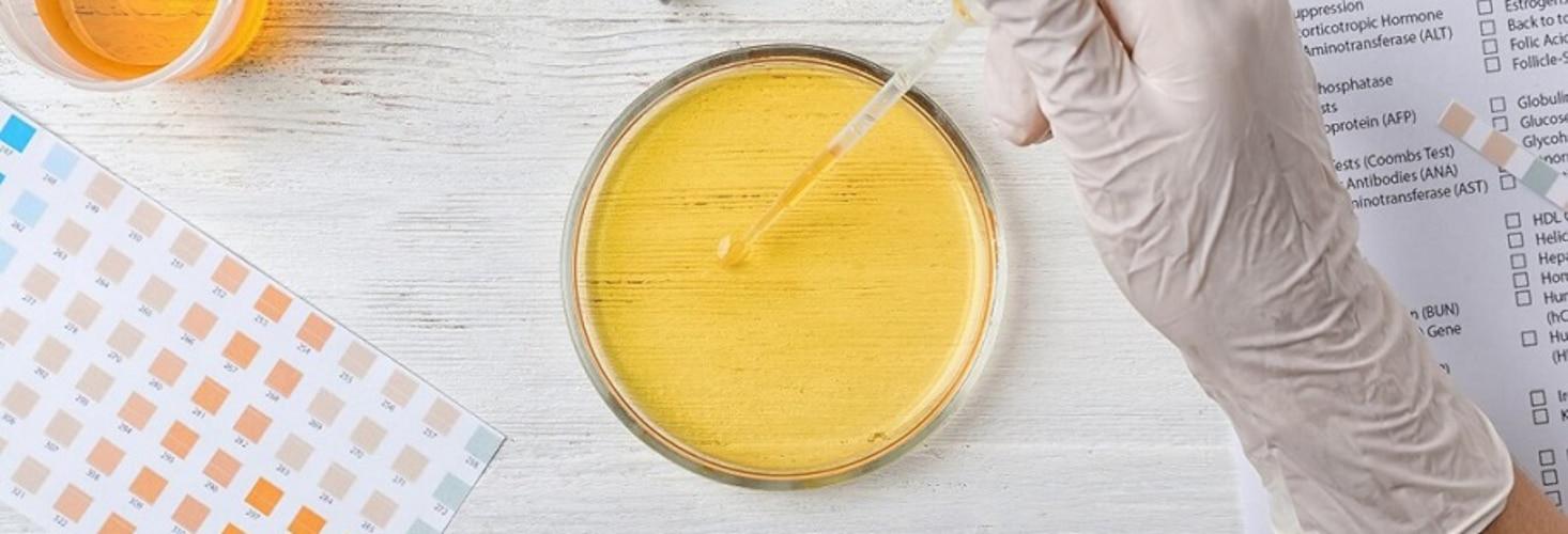 Bakterien im Urin