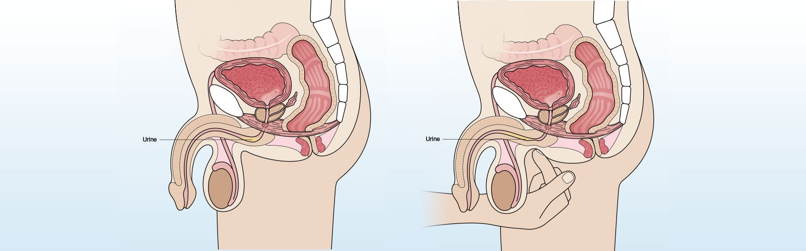 Anatomic illustration of a finger pressing on the urethra behind the scrotum, pushing trapped urine forward.